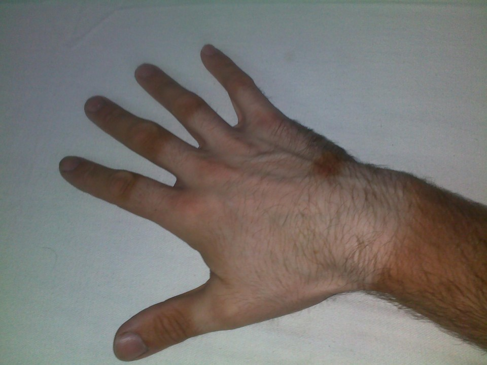 Vin Cox's hand with extreme tan lines from cycling in the Indian sun.